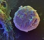 Komórki macierzyste naprawiające uszkodzone organy są nadzieją medycyny regeneracyjnej
