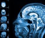 Dzięki obrazowaniu fMRI odkrywa się wiele przypadków osób, u których brakuje niemal całej tkanki mózgowej.