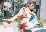 Sarajewa nie udało się zdobyć, ale jego oblężenie i codzienne bombardowania trwały przez trzy i pół roku – trzy i pół roku codziennego lęku, wybuchów, życia w piwnicach i śmierci w kolejce po chleb. Na zdjęciu: ciężko ranna ofiara ostrzału 11-letnia Vahida Hasanovic, 21 lipca 1995.